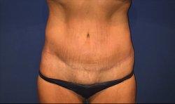 Manhattan abdominoplasty after 16